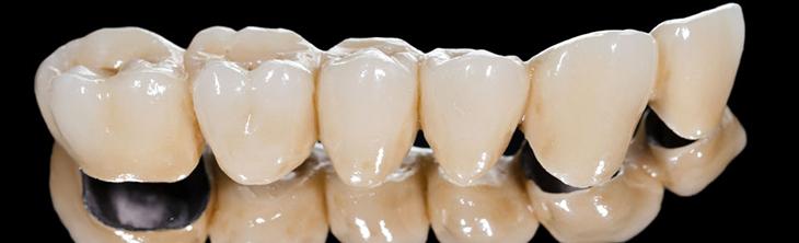 laboratoire de protheses dentaires eguilles-implants dentaires aix-en-provence-protheses ajointes Salon-de-Provence-protheses conjointes Bouches-du-Rhone-protheses dentaires Martigues-laboratoire dentaire Eguilles-prothesiste dentaire Aix-en-Provence